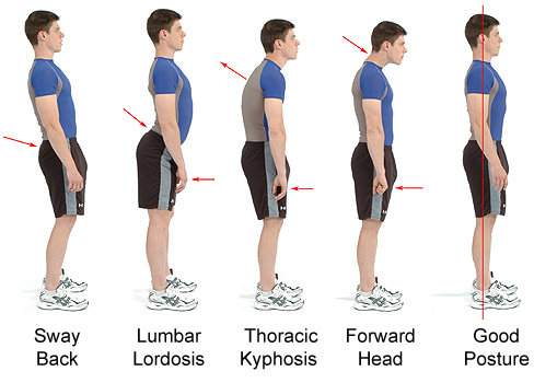 Why Posture Matters- Las Vegas Personal Trainer